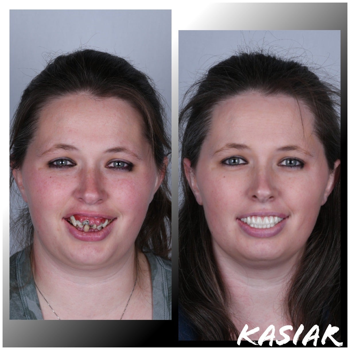 implant denture patient before and after